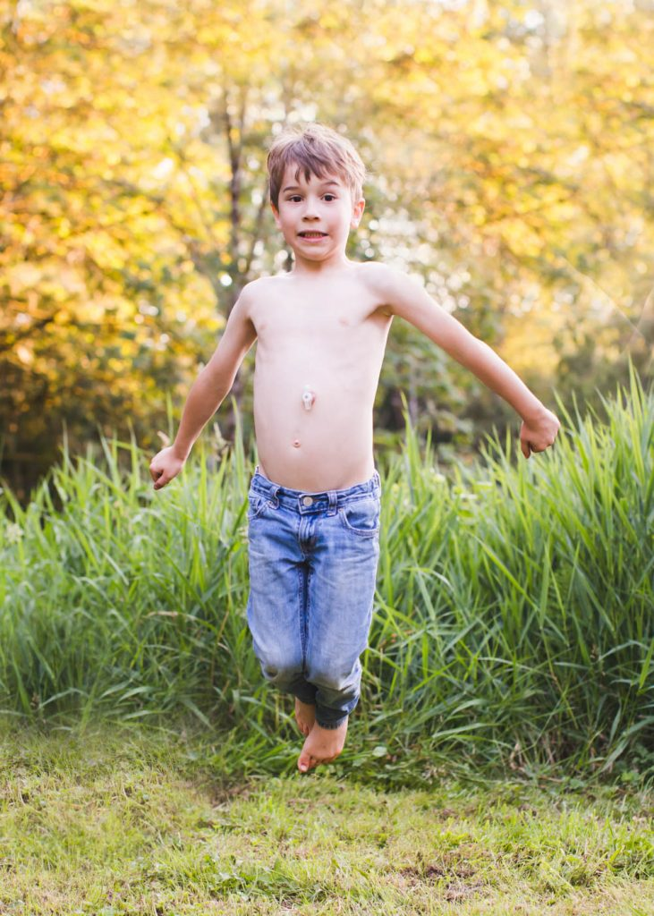 Child jumping outdoors in the summer showing g-tube